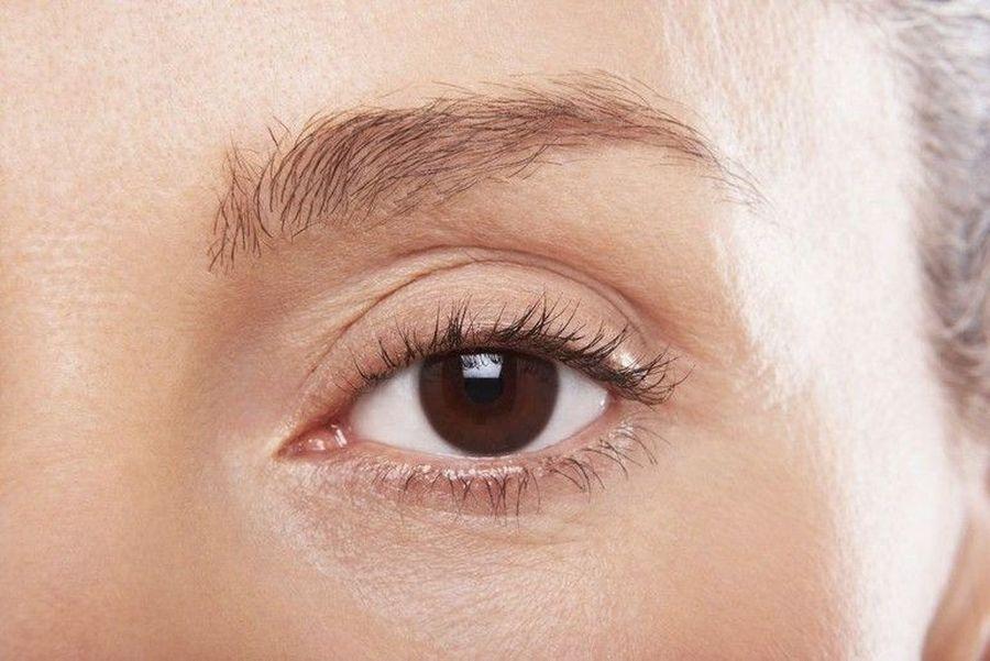 Возрастные изменения глаз