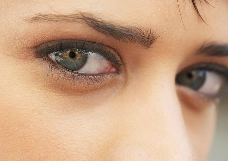 эпоху просвещения фото темные круги вокруг глаз шерлинг прославился
