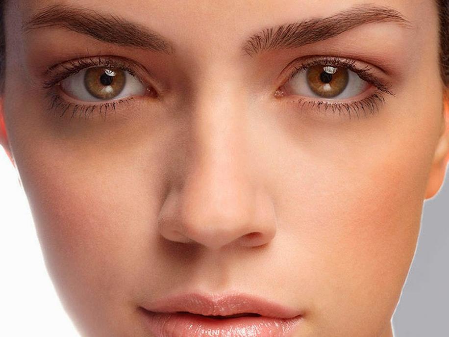 Круги вокруг глаз у женщин причины