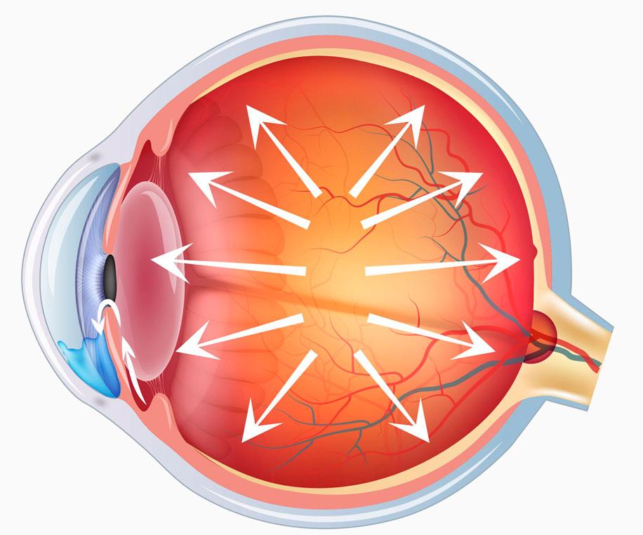 Глаукома нормальное давление лечение