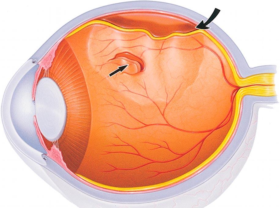 Плавающие помутнения в глазах лечение thumbnail