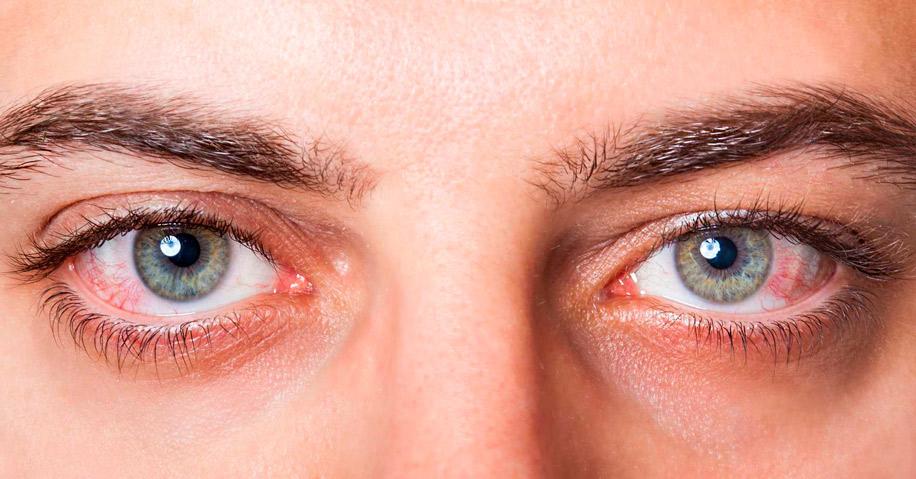 Бактериальная инфекция глаза лечение