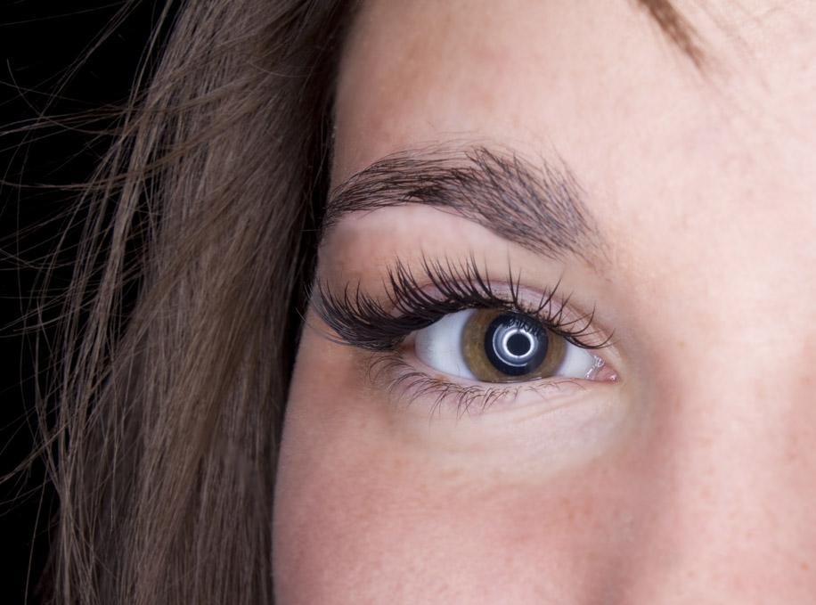 вспышки, искры в глазах — фотопсия