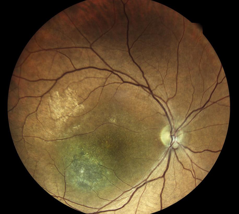Ретиношизис (так в медицине называют эту патологию сетчатки