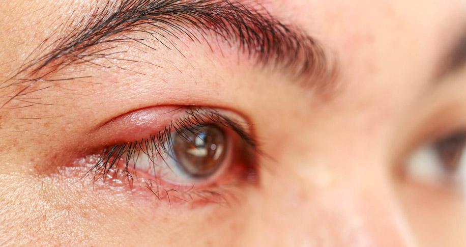 На коже и слизистой глаза