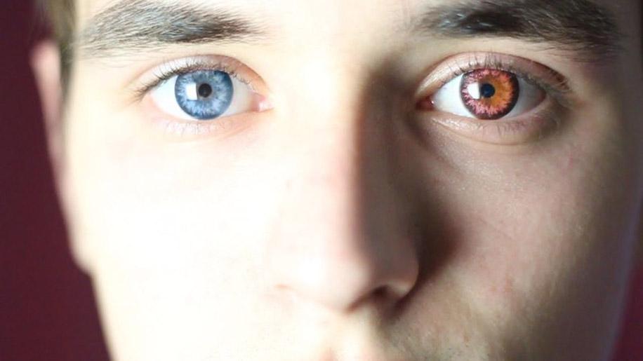 думаю, что фото глаз лунатика васильевском острове