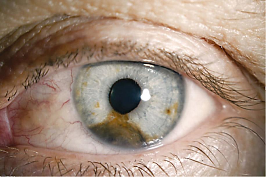 Опухоли хориоидеи — новообразования сосудистой оболочки глаза