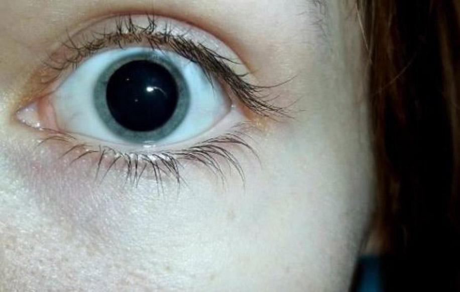 Мидриаз возникает при глаукоме