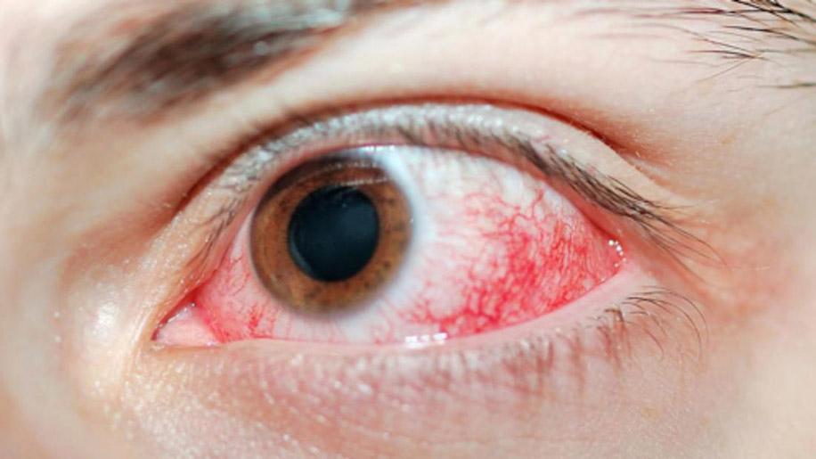 Как обезболить химический ожог глаз