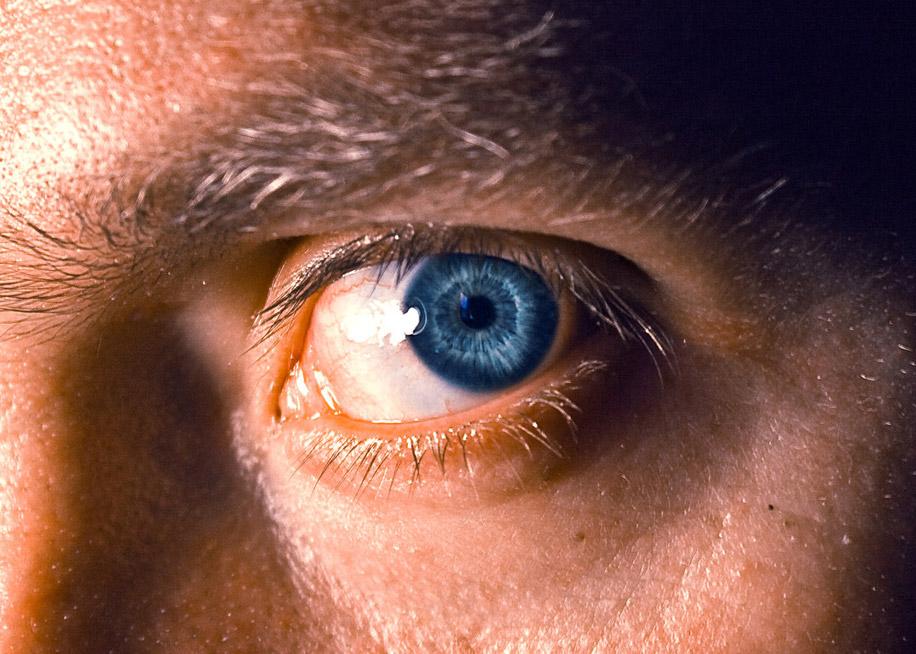 после пользования фотоаппаратом проблема с глазом видят