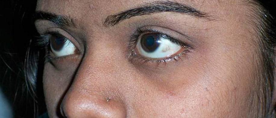 Врожденная куриная слепота лечению не подлежит