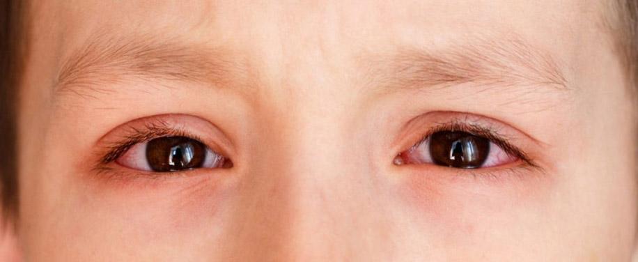 Опасные осложнения при ношении контактных линз