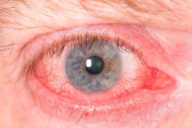 Блефарит глаз лечение народными средствами
