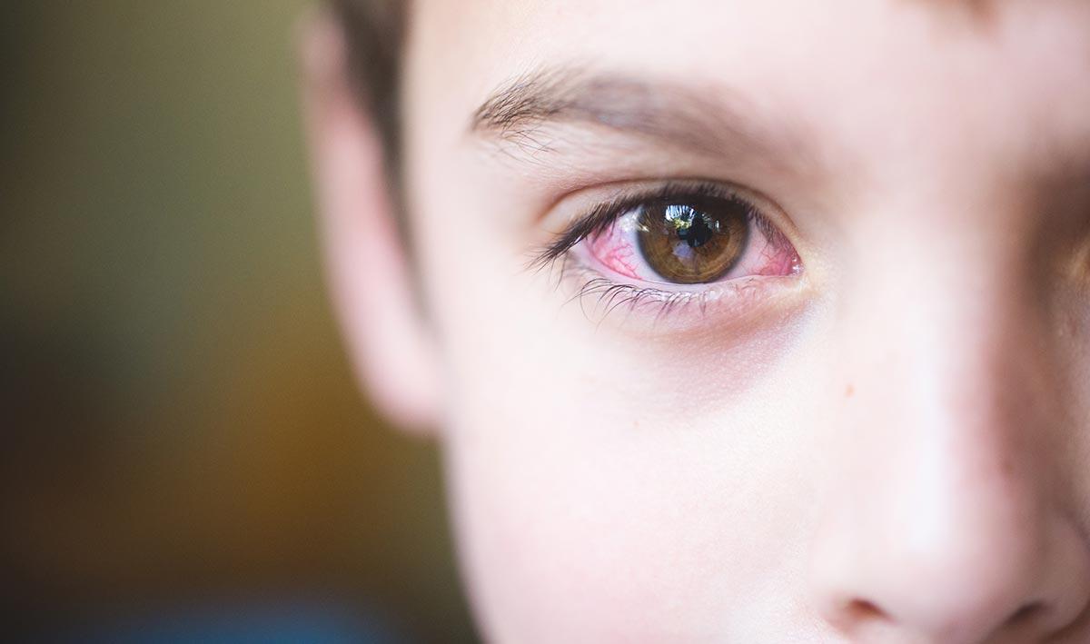 Отек век и покраснение глаз, обильное слезотечение, зуд,  — признаки развития аллергического конъюнктивита у ребенка