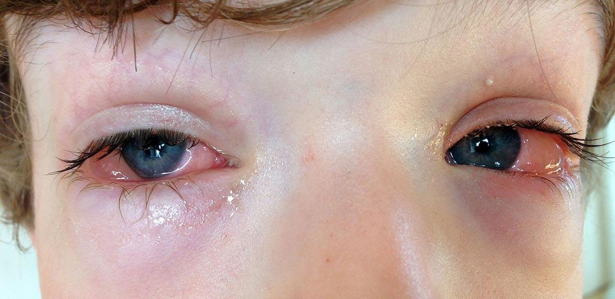 заложенность носа, чихание, обильное слезотечение