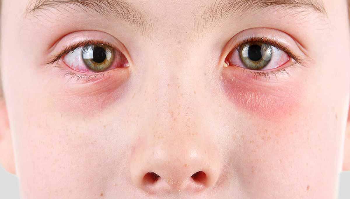 Реакция при контакте с аллергеном возникает очень быстро