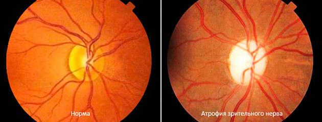 атрофия зрительного нерва и норма