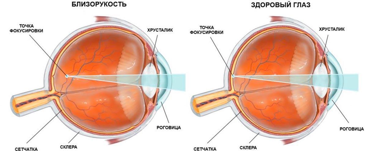 изменение глазного яблока в размерах