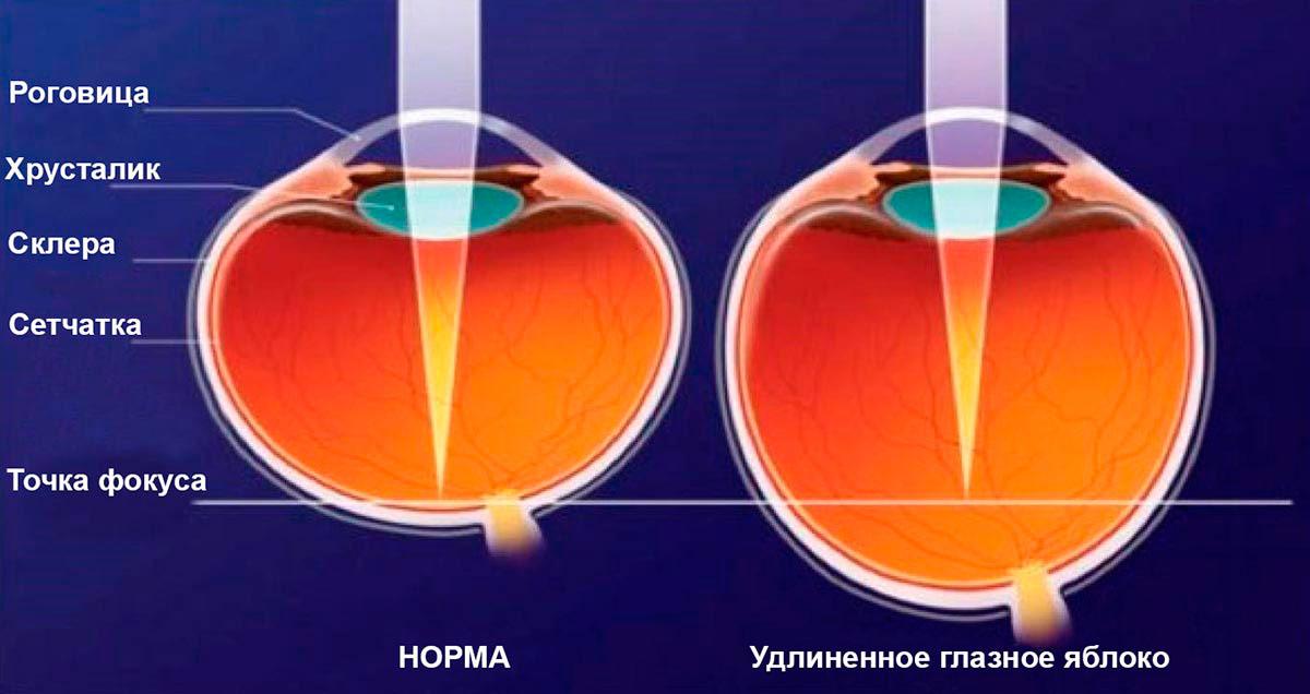 удлиненное глазное яблоко