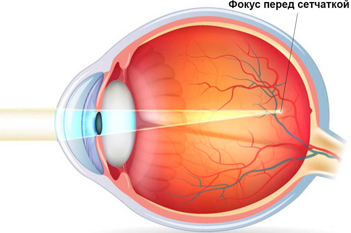poate 100 viziune cu cataracta minerale și vitamine pentru vedere