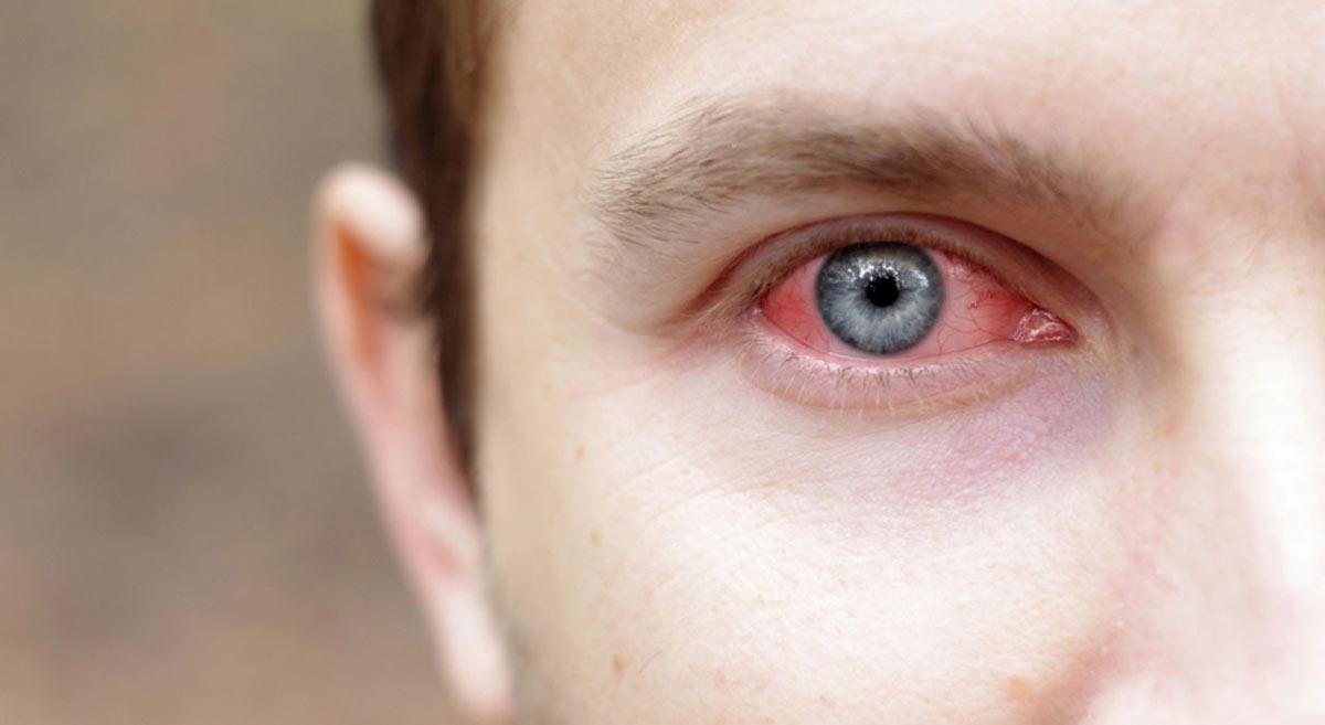 Порой конъюнктивит является разновидностью аллергической реакции организма