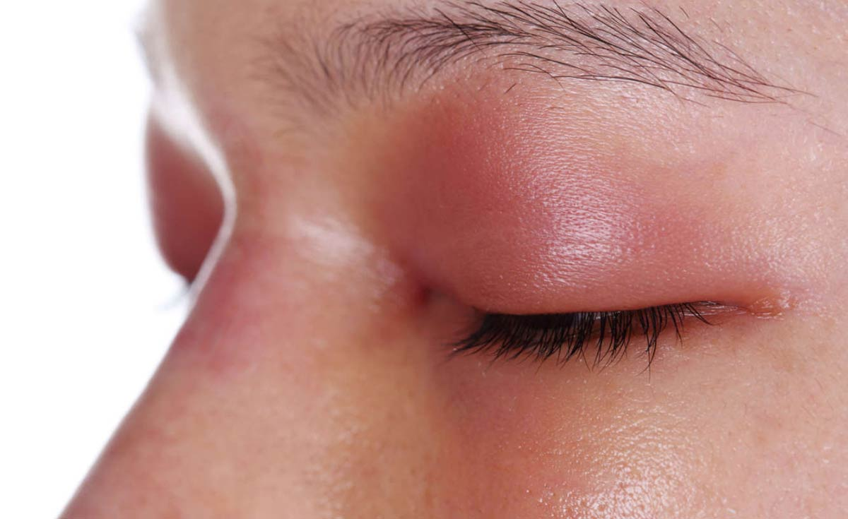 Возникновение припухлости глаза и века может быть вызвано разными причинами.