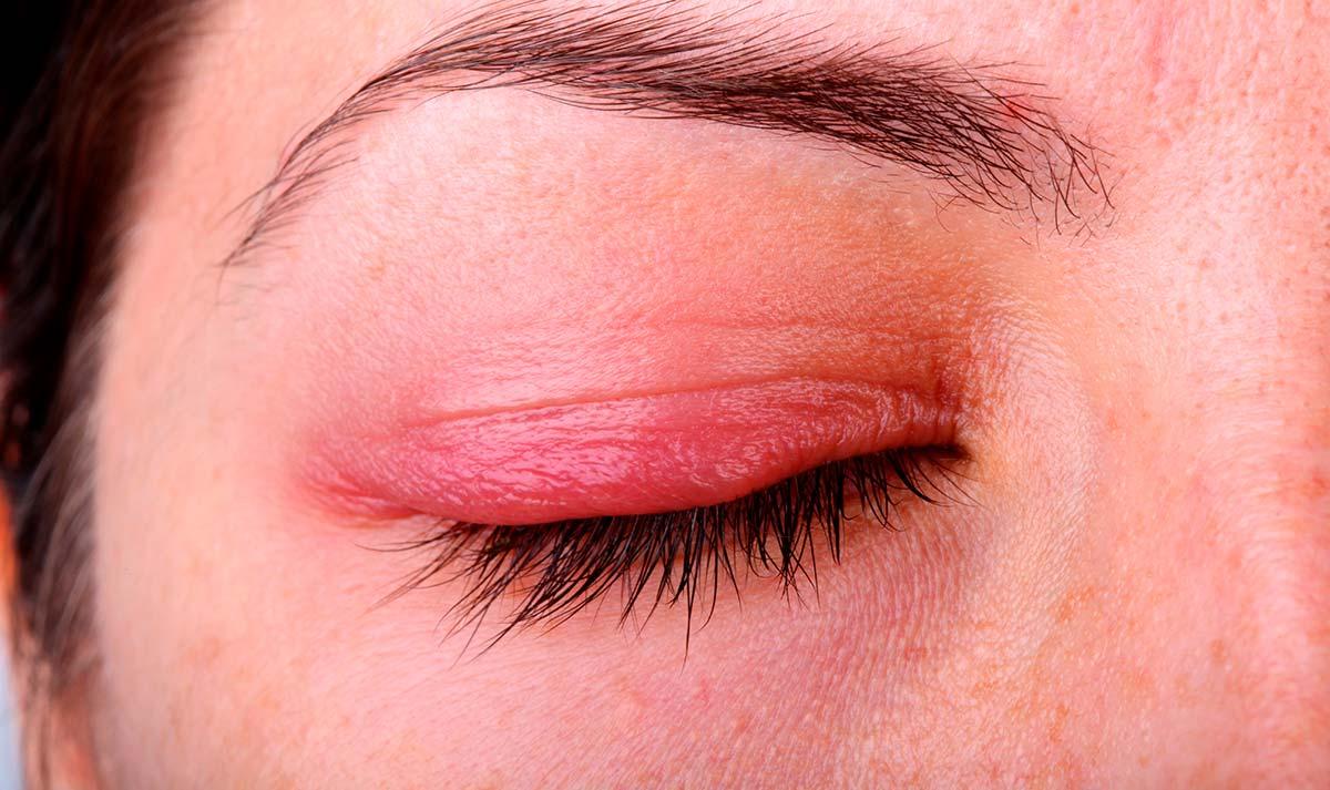 Воспаление глаза веко опухло thumbnail