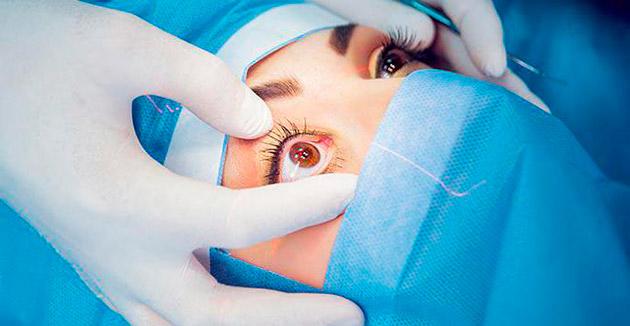 Реабилитация после операции на глаза лазером