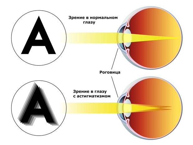 Что такое астигматизм: причины возникновения, классификация ...