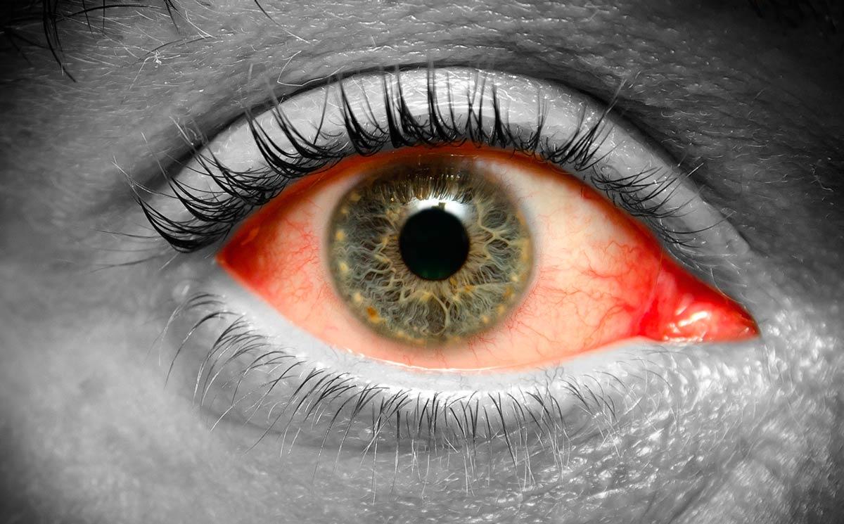 Конъюнктивит — очень распространенная глазная болезнь