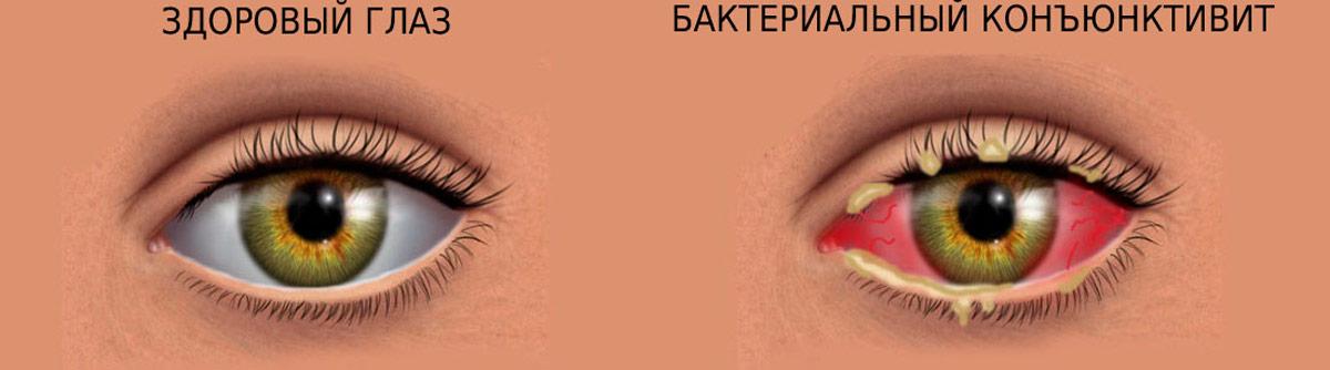 гнойно-слизистые выделения из глаз