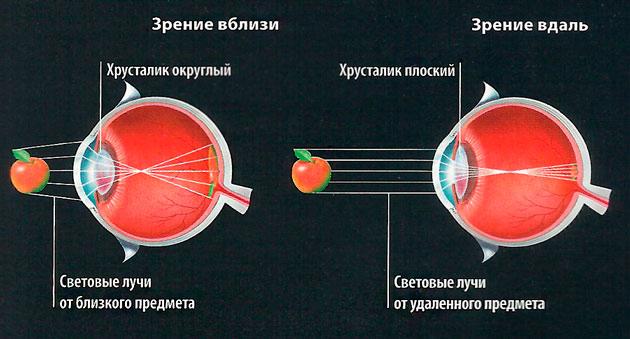 При дальнозоркости предметы фокусируются за сетчаткой