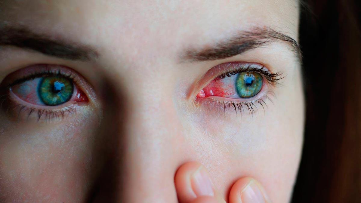 Симптомы грибкового воспаления конъюнктивы