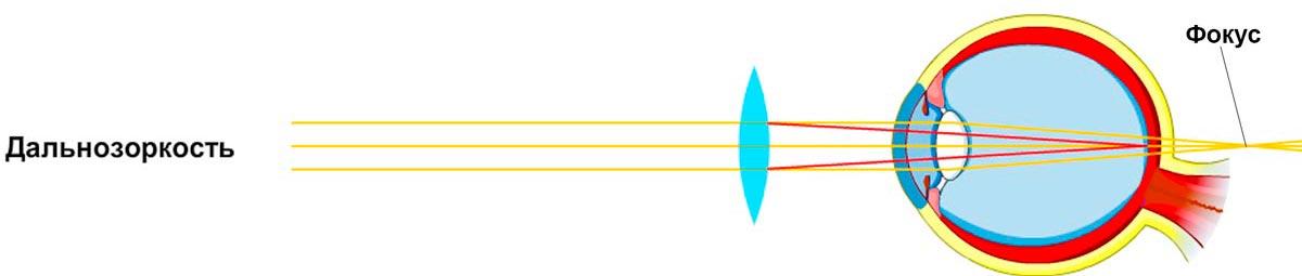 Как определить близорукость или дальнозоркость очков thumbnail