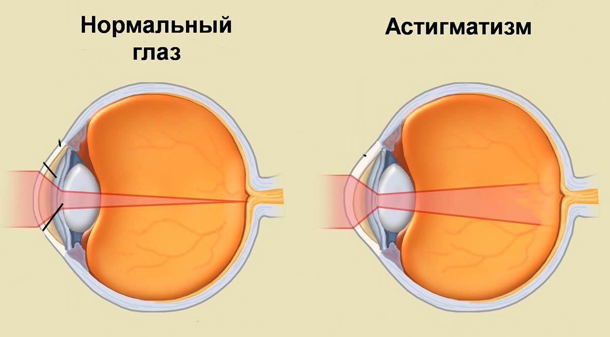 Компьютерные очки при астигматизме thumbnail