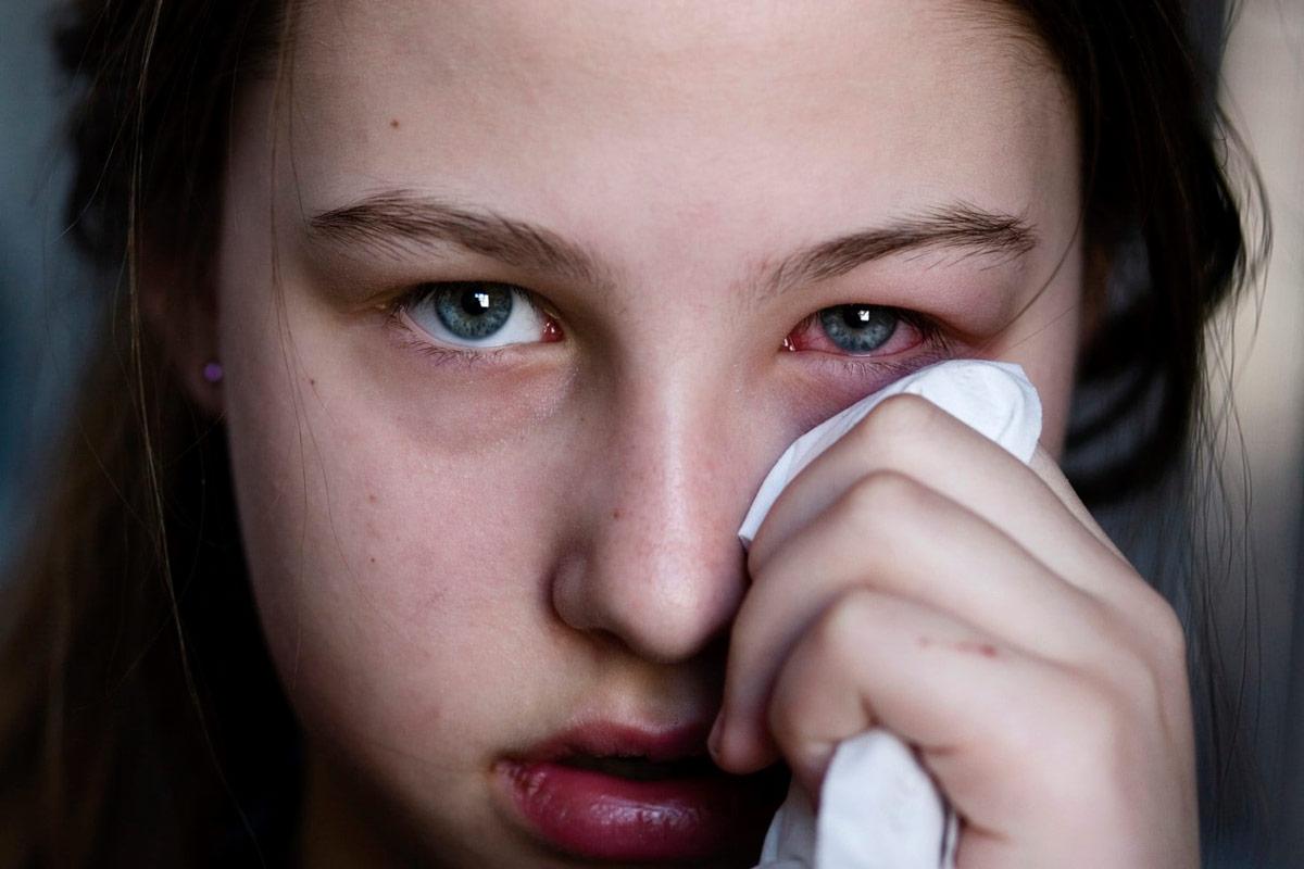 Конъюнктивит — это полиэтиологическое заболевание
