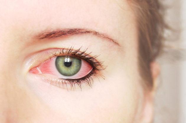 Синдром сухого глаза после лазерной коррекции