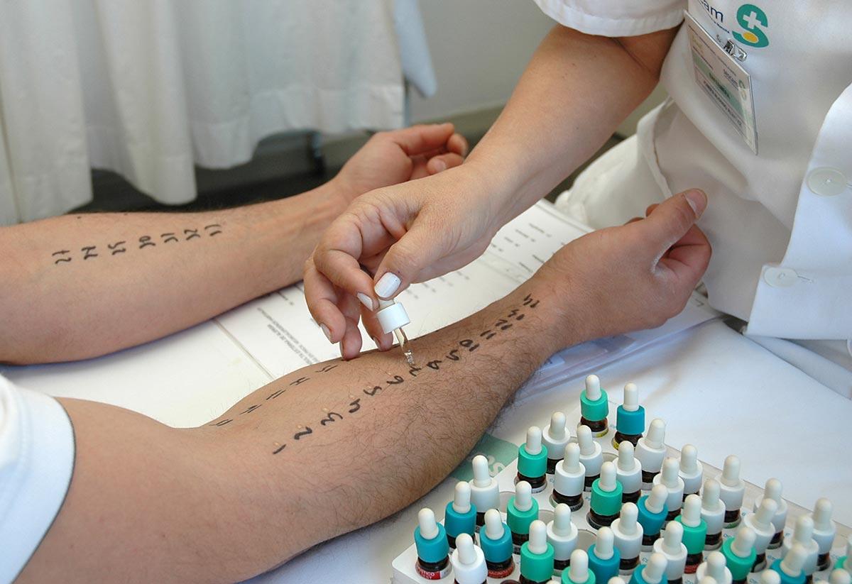 Диагностика заболевания проводится на основе кожных тестов
