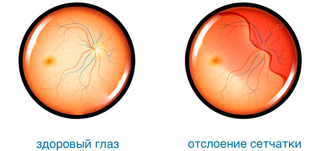 Народное лечение для глаз от близорукости