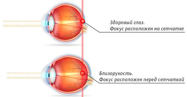 схема работы глаза, близорукость