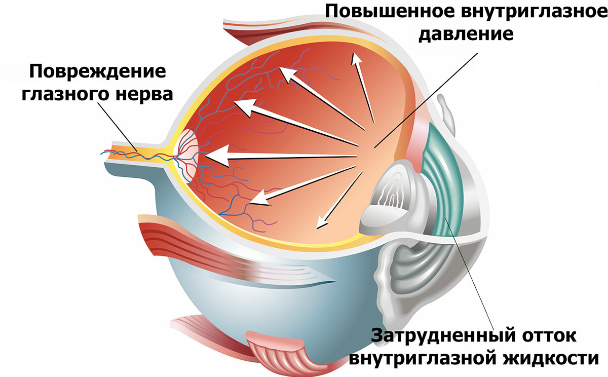 Глаукома — это изменения, происходящие внутри глазного яблока