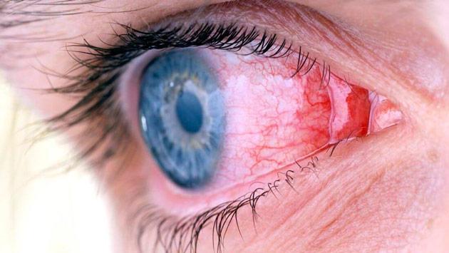 Мазь при конъюнктивите у детей от года и до: ацикловир и другие глазные препараты