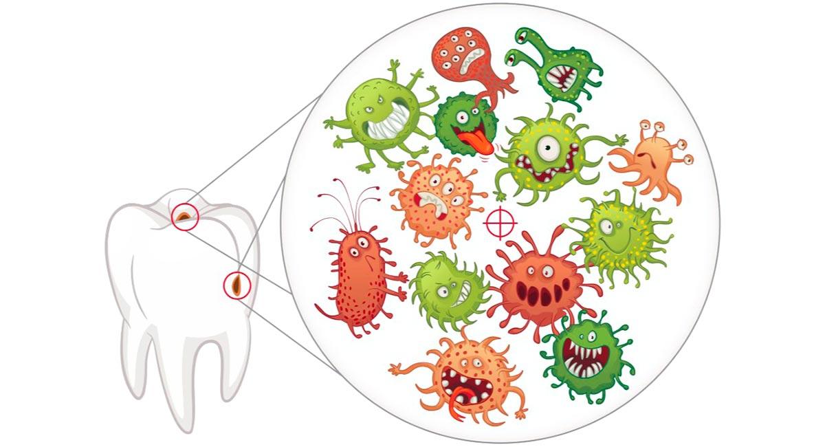 Кариесогенные микробы