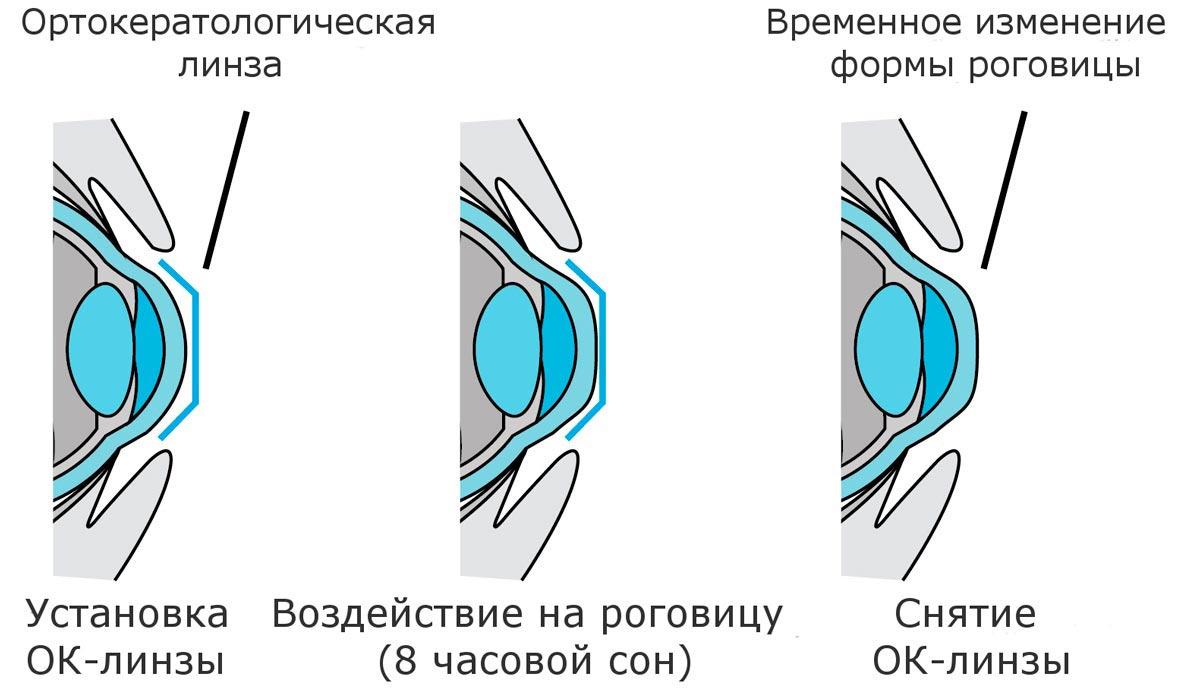 Линзы изменяющие форму роговицы thumbnail