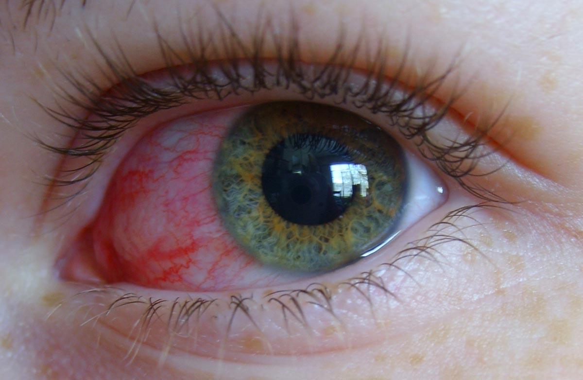 Конъюнктивит — распространенное глазное заболевание