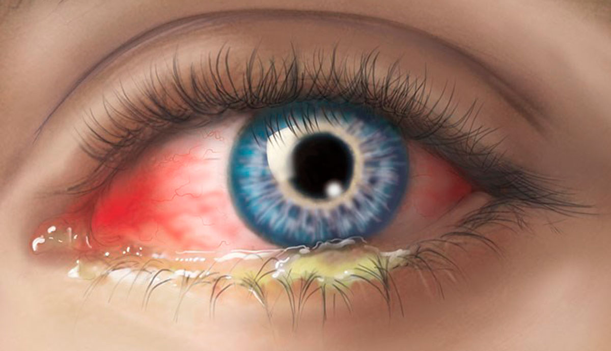 коронавируса пульсирует картинка в глазах взять