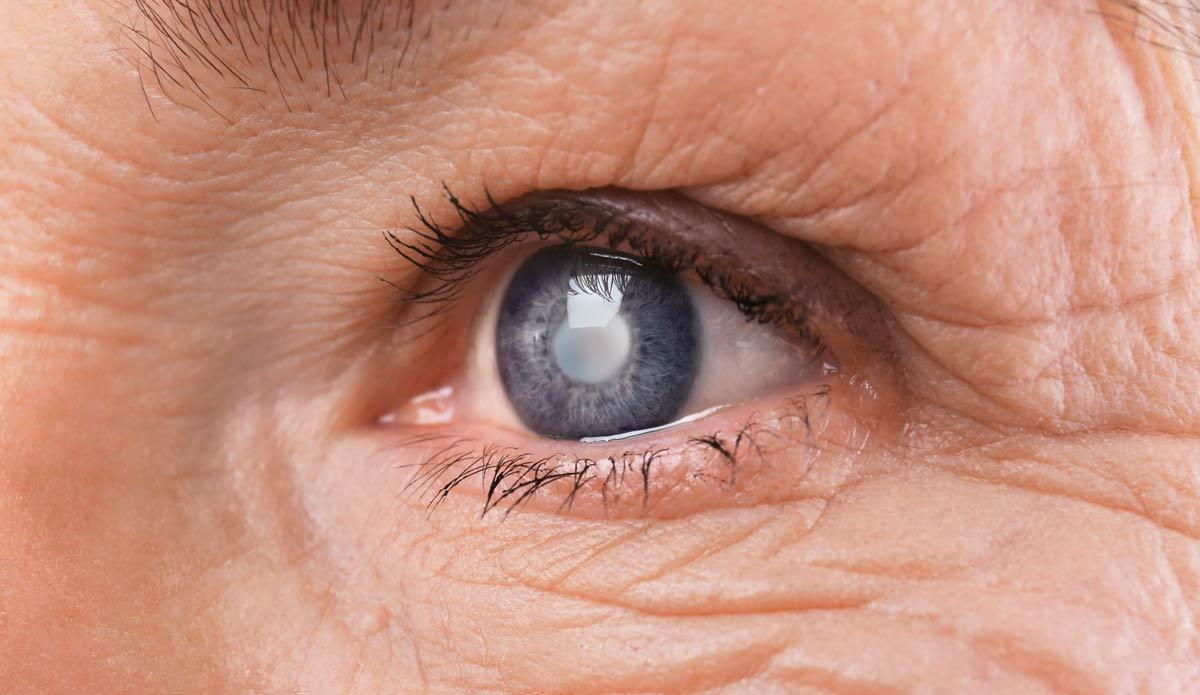 Конъюнктивит после операции катаракта thumbnail