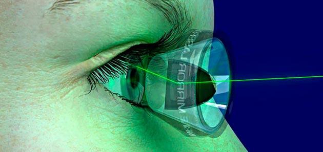 Лазерная операция на глазах при глаукоме - энциклопедия