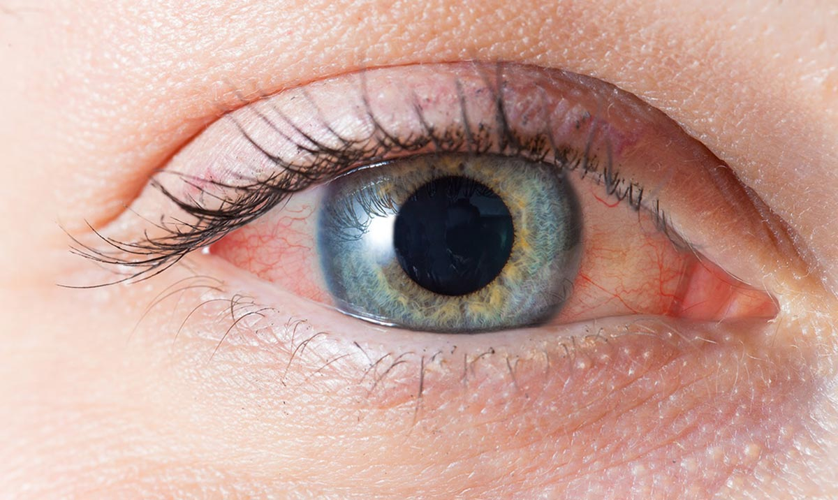Офтальмологи называют конъюнктивитом воспаление слизистой глаза
