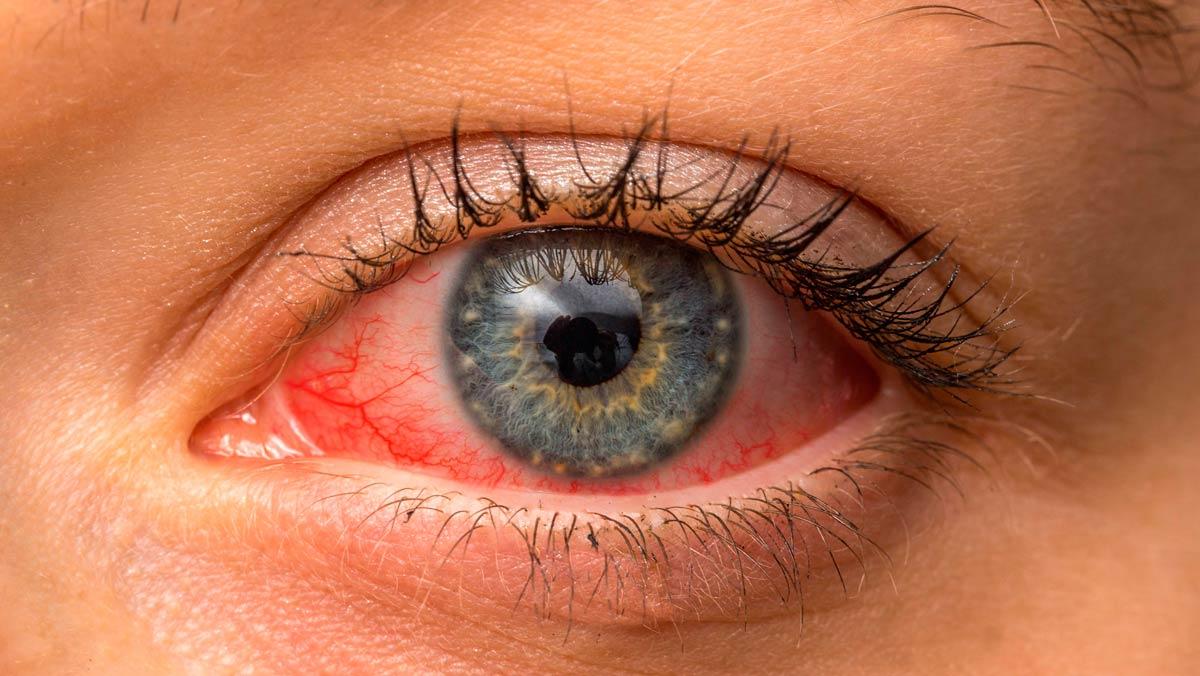 Лечение стафилококка в глазах у взрослых thumbnail